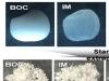 세계 첫 우리 쌀 당뇨개선 효과 입증
