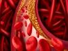 20~30대 젊은층도 이상지질혈증 있으면 심근경색 위험