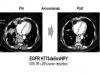 아미반타맙, EGFR 엑손20 돌연변이 폐암서 치료 효과